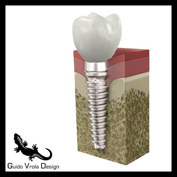 Dental Implant Modelo 3D in Anatomía 3DExport