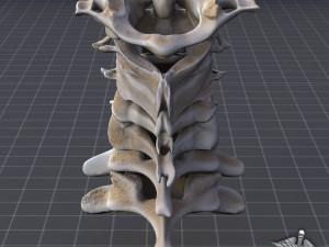 Human Cervical Vertebrae