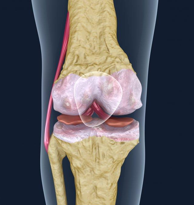 Osteoporosis Of The Knee Joint 3d Model In Anatomy 3dexport