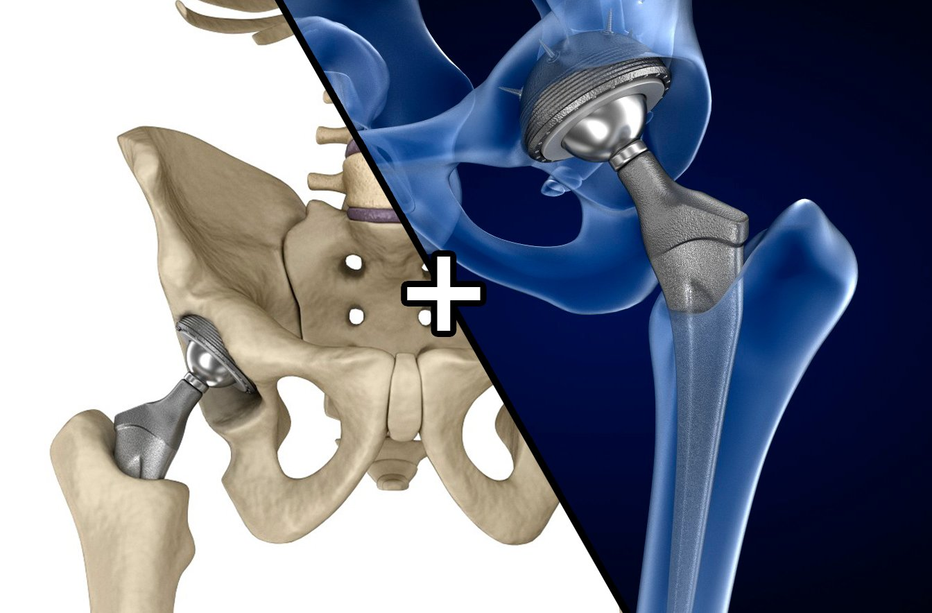 Hip replacement implant installed in the pelvis bone 3D Model in ...